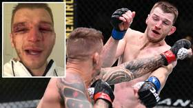 'That's the game we play': BATTERED Dan Hooker sends message to fans after CRAZY war with Dustin Poirier at UFC Vegas 4 (VIDEO)