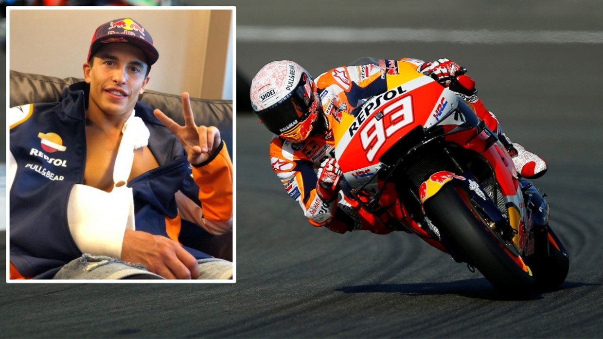 I will come back even stronger!' MotoGP ace Marc Marquez vows to return as  SPECTACULAR crash leaves him with broken arm (VIDEO) — RT Sport News