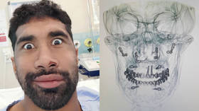 'Nailed it': Rugby star laughs off having 20 SCREWS inserted in his face after gruesome injury