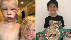 'The bravest man on earth': 6yo boy bitten in FACE by dog while shielding sister receives honorary World Champ belt