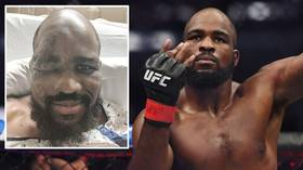 UFC star Corey Anderson displays gruesome facial injuries suffered after he collapsed due to his HEART STOPPING (PHOTOS)