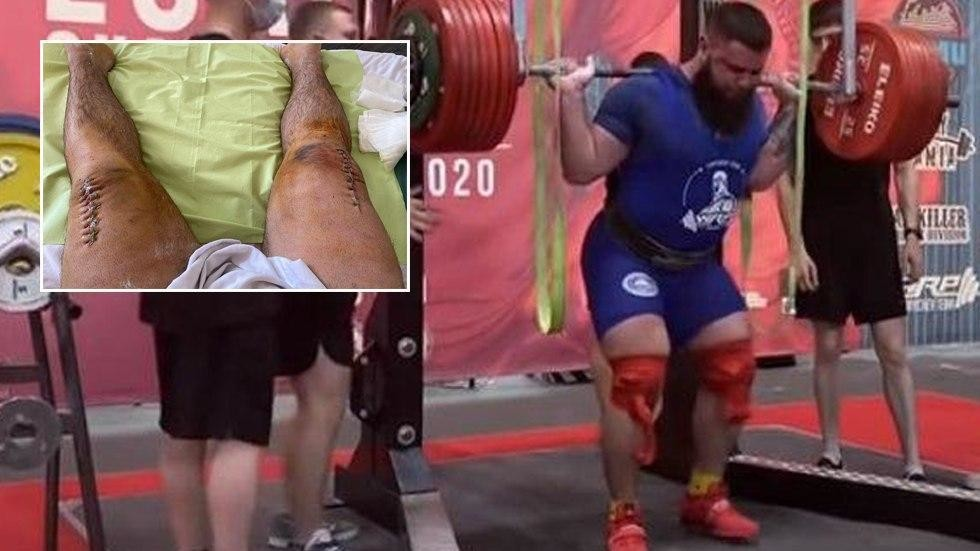 'Gross alert!' Russian power lifter reveals HORRIFIC result of gruesome injury