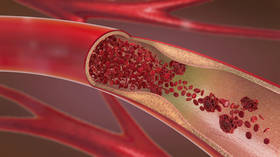 Siberian University develops way to produce artificial blood vessels for 90% cheaper than existing method