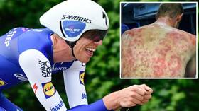 'These guys are TOUGH!' Cyclist reveals HORRIFIC bruises after riders caught in HAILSTORM at Criterium du Dauphine race (VIDEO)