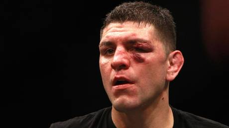 UFC icon Nick Diaz '100% fighting again' after completing intensive training program, according to manager (VIDEO)