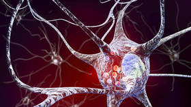 Scientists think Parkinson's might be 2 diseases in 1, as fears grow Covid-19 may spark a wave of the disorder