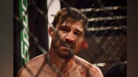MMA fighter Johnny Campbell shared the details of his horror ear injury. © Instagram @johnnyccmma