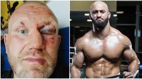 Kharitonov showed off the injuries he sustained from fellow MMA fighter Yandiev. © Instagram @kharitonovmma / @adam_yandiev_boroda