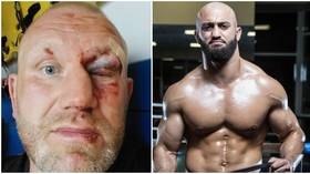 'Only fight in competition': MMA veteran Kharitonov shows horror eye injury but UFC's Yandiev DENIES using knuckleduster in attack