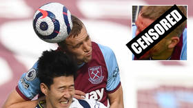 'He's a monster!': Fans hail heroics of West Ham's Soucek as he suffers GRUESOME gash – but plays on anyway (GRAPHIC PHOTOS)
