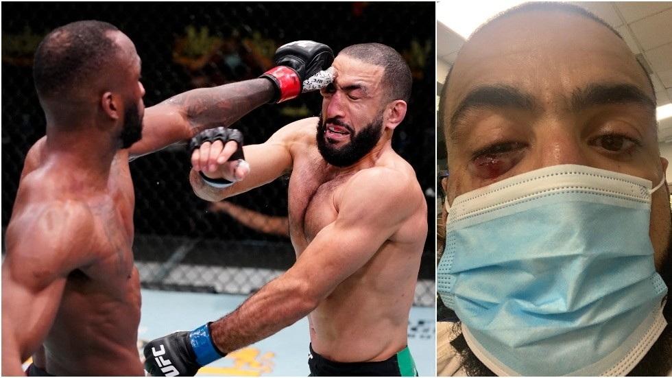 UFC fans and fighters demand action as SICKENING eye-poke causes Edwards-Muhammad clash to end in no contest
