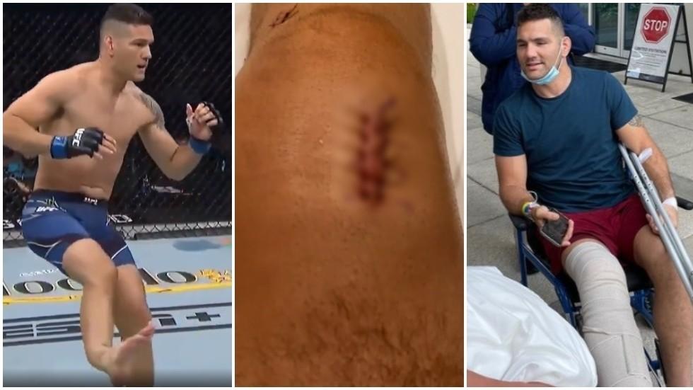 UFC Chris Weidman shows scars from horror leg injury