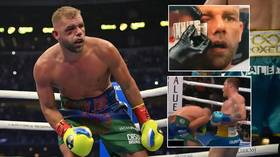 Battered Billy Joe Saunders still in hospital and set for surgery on shattered orbital bone after beating by Canelo (VIDEO)