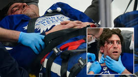 'He's lucky to be alive': NHL star John Tavares recovering after taking sickening knee to the face (VIDEO)
