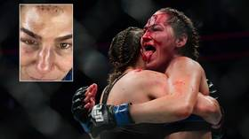 'Hard as nails': Blood-soaked UFC fighter & OnlyFans star Jessica Eye STICKS OUT TONGUE after suffering horror wound (GRAPHIC)