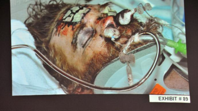 An evidence photo of beating victim Kelly Thomas in hospital, as it was shown during a preliminary hearing on his death, for Fullerton police officers Manuel Ramos and Jay Cicinelli at the Orange County Superior Court in Santa Ana, California May 7, 2012 (Reuters / Joshua Sudock / Pool)
