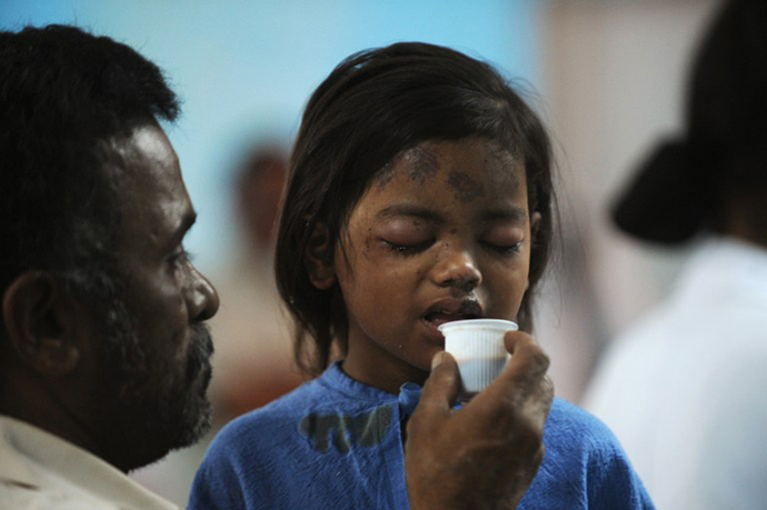 Sandhya, 4, a survivor of a building collapse, recovers at a hospital in Thane, on the outskirts of Mumbai on April 5, 2013. (AFP Photo / Punit Paranjpe)