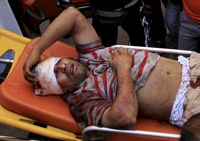 A man injured from clashes between supporters of Egyptian President Mohamed Mursi and anti-Morsi protesters lies on a stretcher in Sedy Gaber in Alexandria, June 28, 2013. (Reuters)