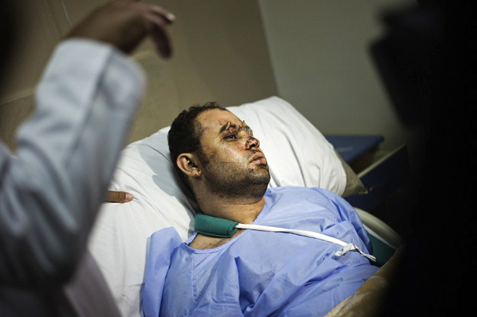 An Egyptian police officer lies on his hospital bed on August 18, 2013 as he recovers from gunshots wounds sustained during clashes with supporters of ousted president Mohammed Morsi, in Cairo. (AFP Photo / Gianluigi Guercia)