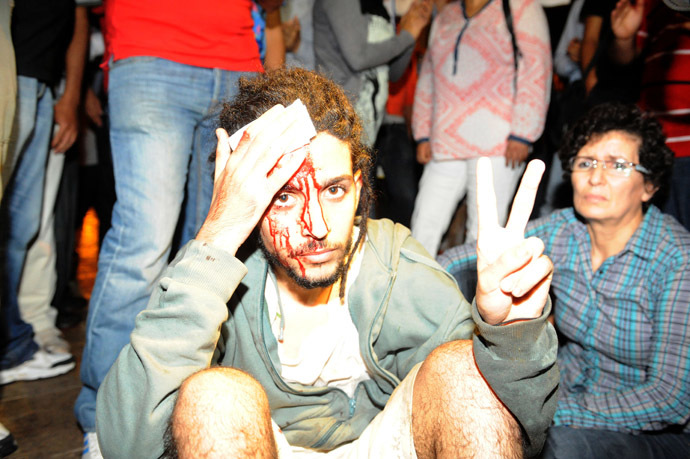 A protester injured during a demonstration on August 2, 2013 in Rabat-Morocco on the release of a Spanish paedophile, Daniel Fino Galvan who raped 11 local children was pardoned by the Moroccan King Mohammed VI. (AFP Photo/Fadel Senna)