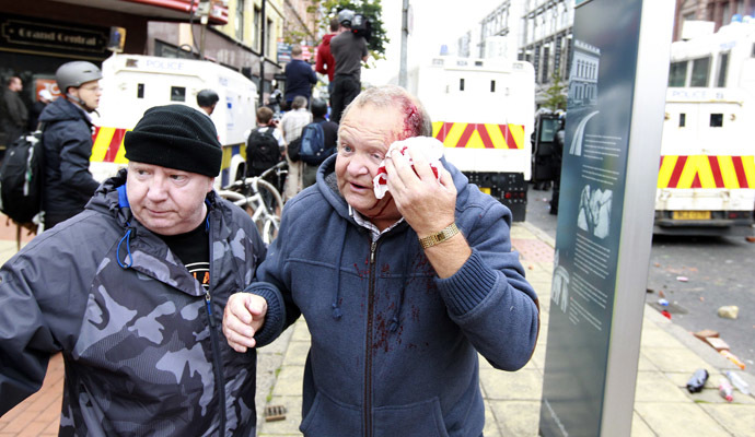 A man covers a wound to his head after loyalist protesters attacked the police with bricks and bottles as they waited for a republican parade to make its way through Belfast City Centre, August 9, 2013. (Reuters/Cathal McNaughton)