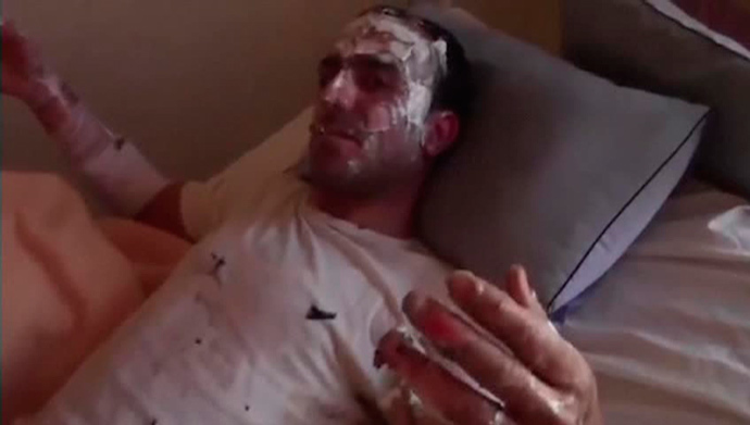 This still image taken from an amateur video off a social media website on August 30, 2013 purportedly shows a wounded man recuperating after an attack that according to the video took place on August 26, 2013 (Reuters / Reuters TV)