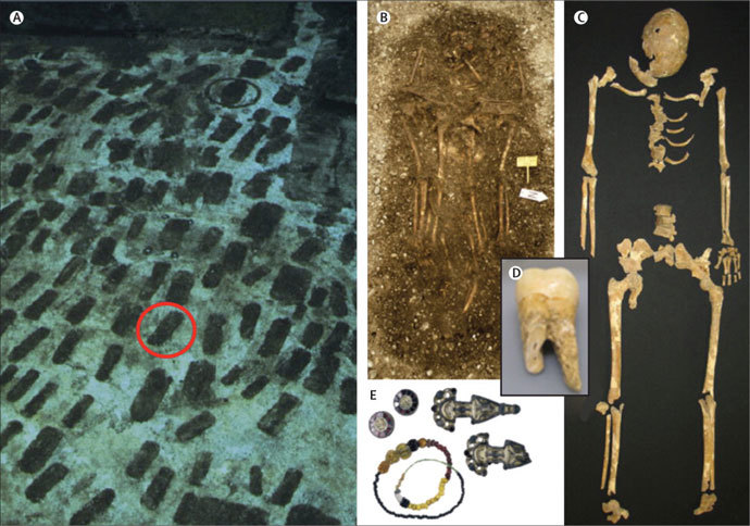 The cemetery in Bavaria, Germany (A). The skeleton of a victim of the Plague of Justinian (C). Objects (E) from the grave (B) that helped scientists to estimate the plague victim's death as occurring between 525 AD and 550 AD. A tooth from which the genome of the plague was extracted (D). (Image from thelancet.com)