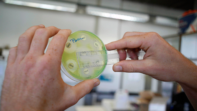 A researcher holding a petri dish with a culture at the microbiology lab of the Universitair Ziekenhuis Antwerpen, a hospital in Antwerp on August 13, 2010 (AFP Photo)