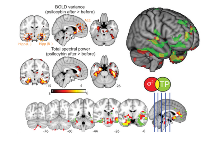 "A screenshot from the article ""Enhanced repertoire of brain dynamical states during the psychedelic experience"" with maps of statistical significance for variance (σ2) and total spectral power (TP) increases in the human brain after psilocybin infusion."