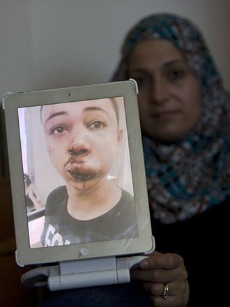 The mother of Tarek Abu Khdeir (portrait), the 15-year-old cousin of the murdered Palestinian youth Mohammad, shows a picture of her son, she took of him at the hospital after he was assaulted by Israeli police in East Jerusalem on July 5, 2014. (AFP Photo / Ahmad Gharabli)