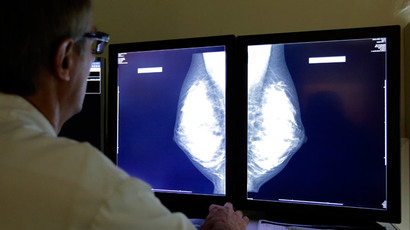 'Sea sponge' drug may extend life for breast cancer patients