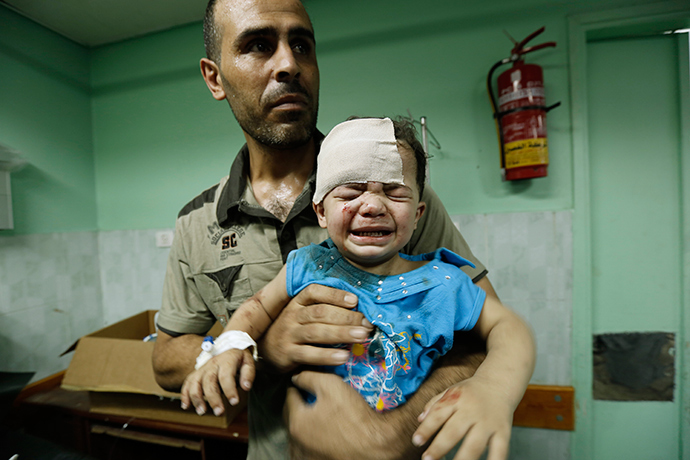 A Palestinian child, wounded in an Israeli strike on a compound housing a UN school in Jabalia refugee camp in the northern Gaza Strip, receives treatment at Kamal Adwan hospital in Beit Lahia early on July 30, 2014 (AFP Photo / Mohammed Abed)