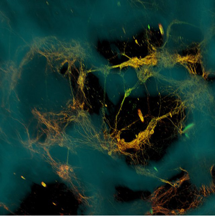 Confocal microscope image of neurons, courtesy of Tufts University.