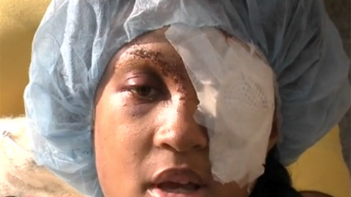 Pregnant woman loses eye from St. Louis County police bean-bag shooting