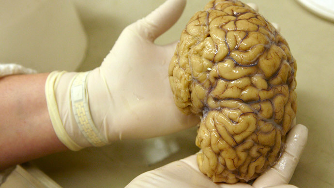 It's a no-brainer: Texas 100 missing brains mystery solved