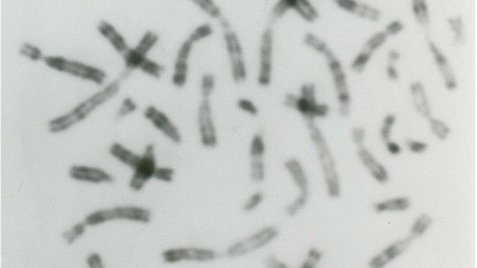 Human chromosomes. Image from flickr.com (Author: Wōdanaz)