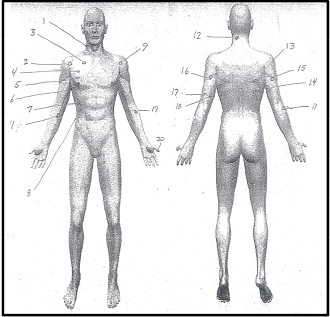 Bullet trajectories from Dontre Hamilton's autopsy (Milwaukee County District Attorney's Office report)