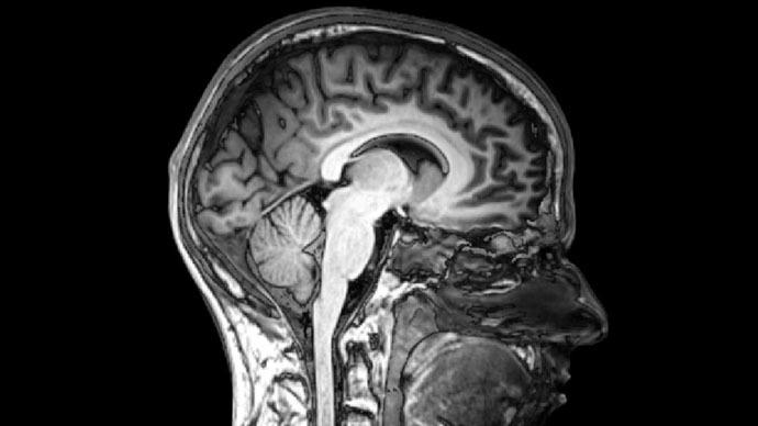 Serotonin brain map could revolutionize antidepressants