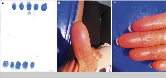 After chemo, the woman's fingerprints were unrecognizable (Dr. Yanin Chavarri-Guerra and Dr. Enrique Soto-Perez-de-Celis)