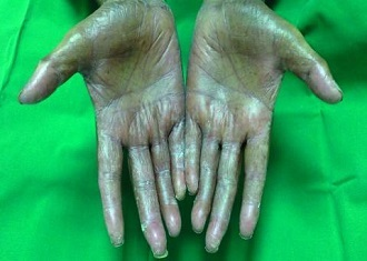 Grade 3 hand–foot syndrome with shedding of the skin of both palms (Oncologist/Dr. Mahmoud S. Al-Ahwal)