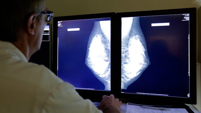 Osteoporosis drug protects bones from breast cancer metastasis – study
