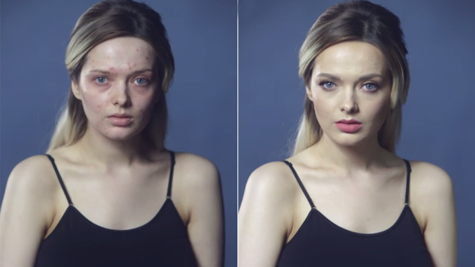 #YouLookDisgusting: Beauty blogger's video exposes double standards of social media