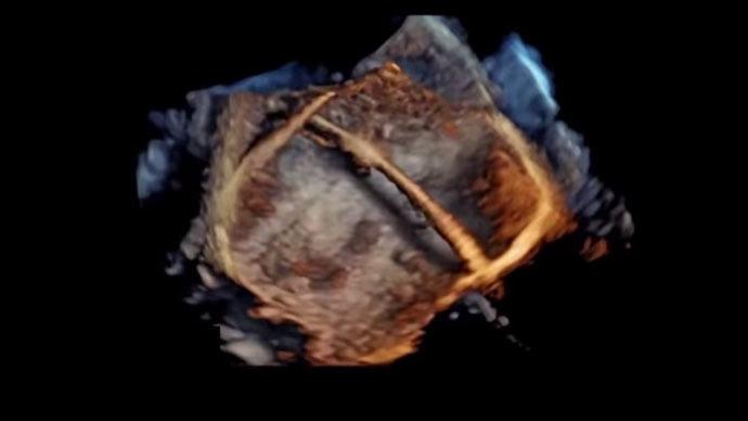 Revolutionary 4D images of human heart (PHOTOS, VIDEOS)