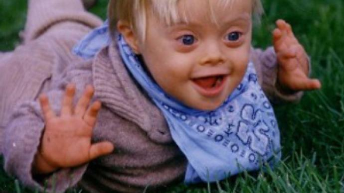 Facebook page unites anti-Down Syndrome activists, sparks controversy