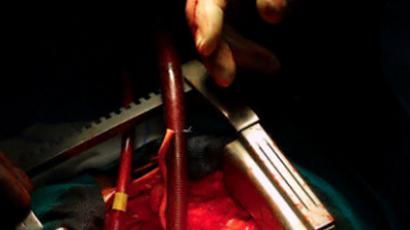 Healing hearts: short scalpel-free surgery saves lives