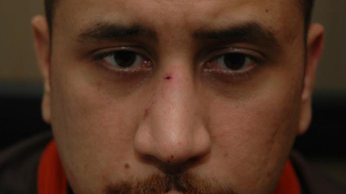 DNA tests confirm Martin didn't grip Zimmerman's gun