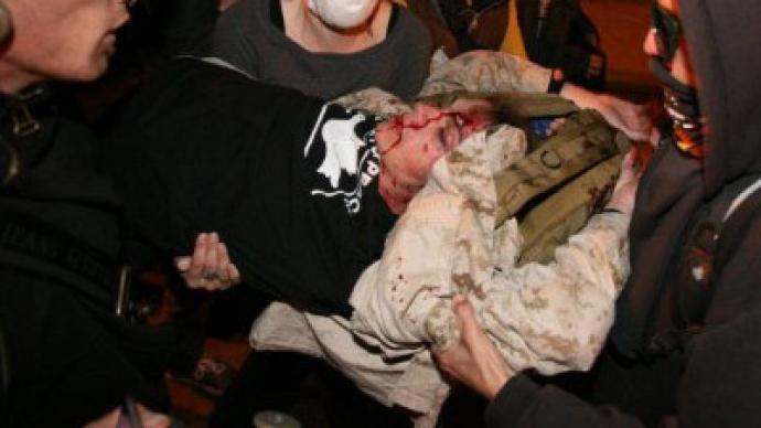 Veteran in critical condition after police assault at Occupy Oakland