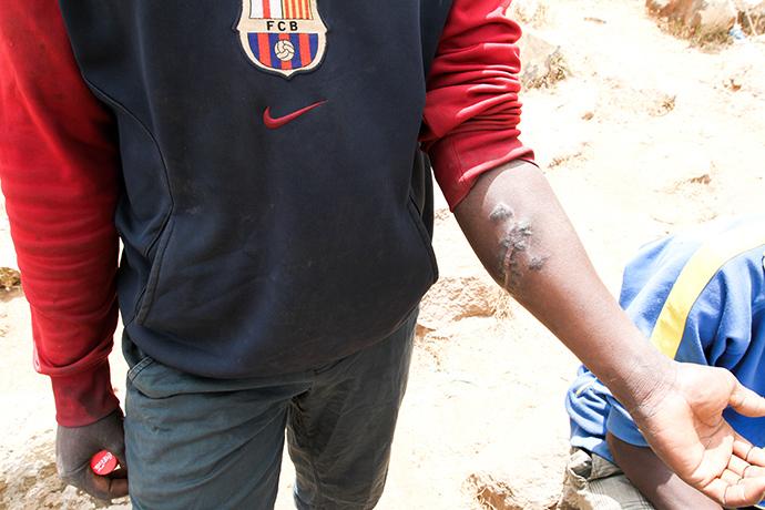 Mamadou, from Mali, with scars resulting from a beating by Moroccan soldiers. Photo by @TomasoClavarino