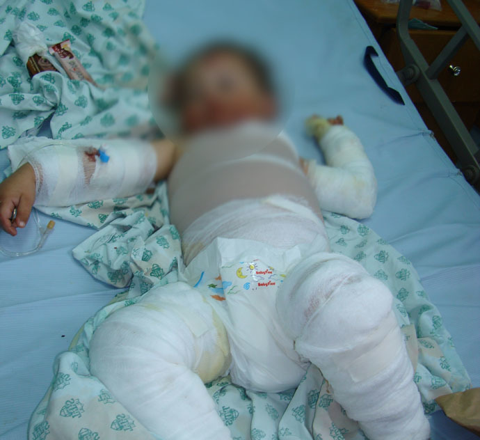 Farah Abu Halima, 3, severely burned by Israeli-fired White Phosphorus, January 4, 2009 (Photo by Eva Bartlett)