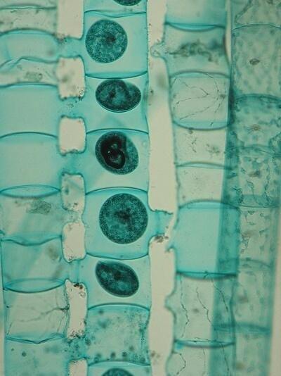 La spirogyre, qui contamine l'éponge et met ainsi en danger la pureté des eaux du lac Baïkal.